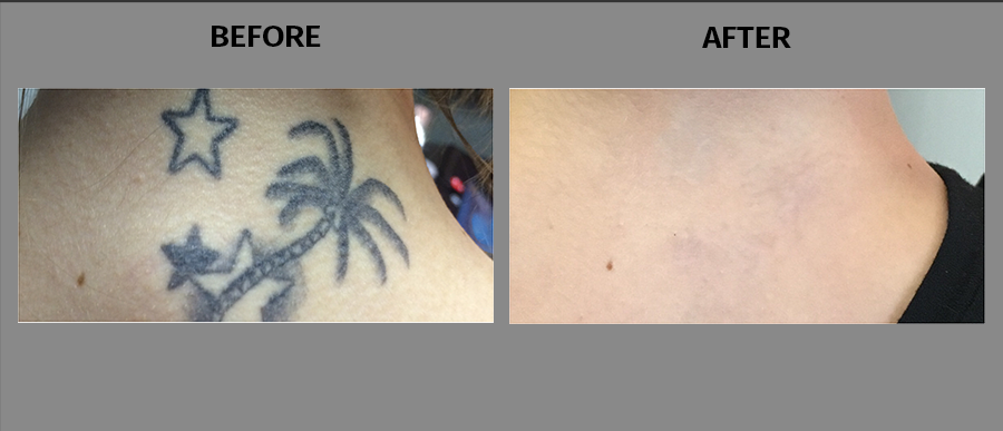laser tattoo removal cleveland oh